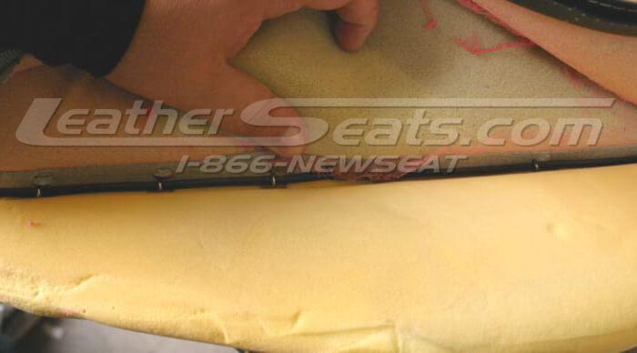 Seam line hog ring removal.